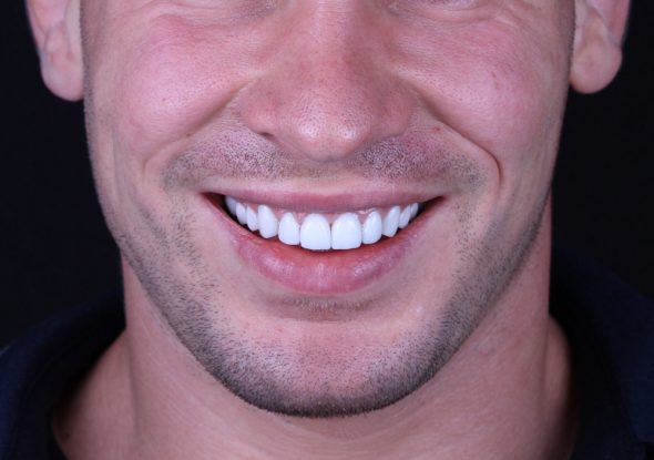 Veneers vs. Bonding: The Pros and Cons of Each