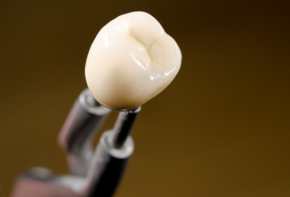 Curious if oral implants are for you? The basics that you need to know before implants are fitted